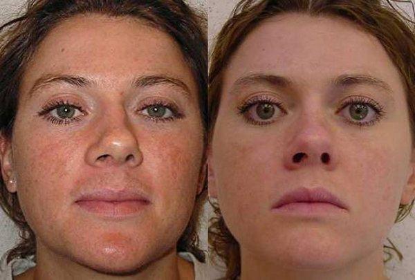 Фото до и после ретиноевого пилинга №2
