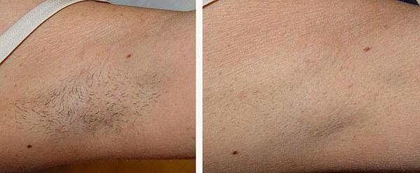 Фото до и после лазерной эпиляции №1