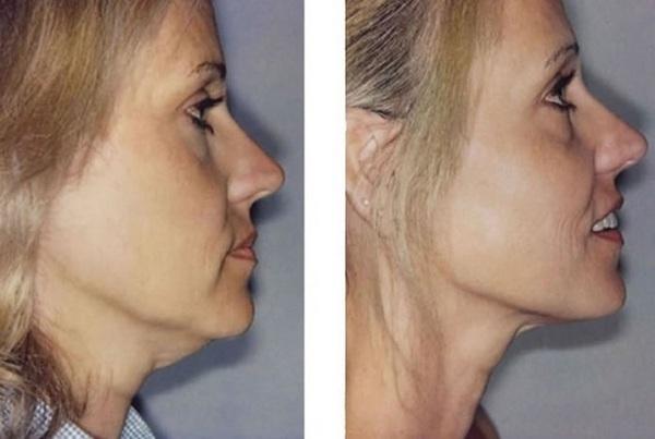 Фото до и после процедур RF-лифтинга для подтяжки скул