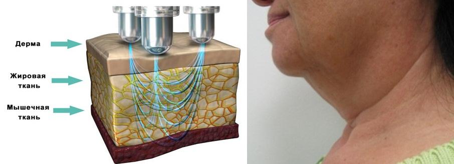 Глубокое воздействие на ткани позволяет устранить локальные жировые отложения