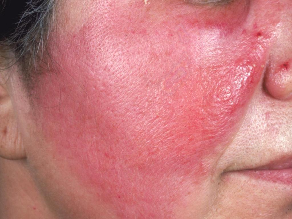 Могут возникнуть воспалительные процессы при неправильном проведении процедуры или последующем уходе за кожей