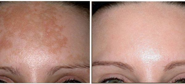 Фото до и после использования рубинового лазера для удаления пигментных пятен №1
