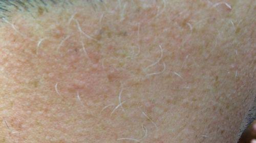Для седых волос лазерная эпиляция неэффективна
