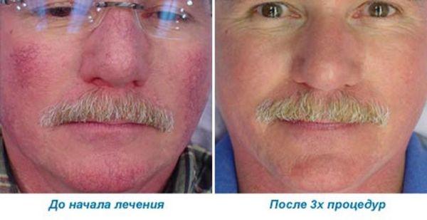 Фото до и после склеротерапии для удаления сосудистых звездочек