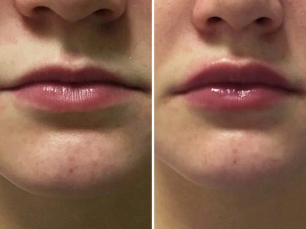Фото до и после использования средства Surgiderm 30