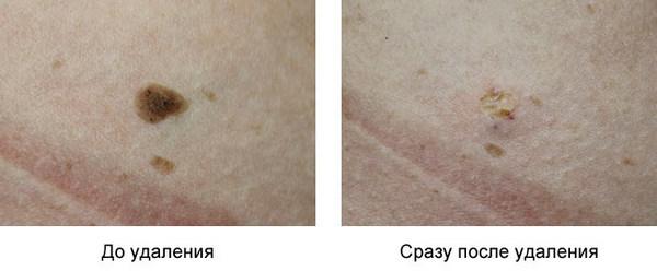 Фото до и после удаления бородавки с помощью радиоволнового метода