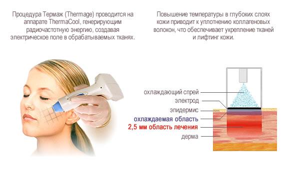 Во время процедуры происходит прогревание глубоких слоев кожи