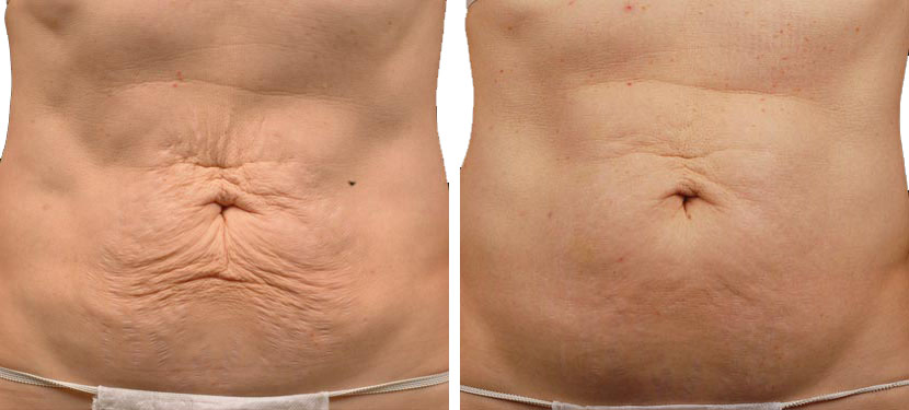 Фото до и после процедуры термажа №3