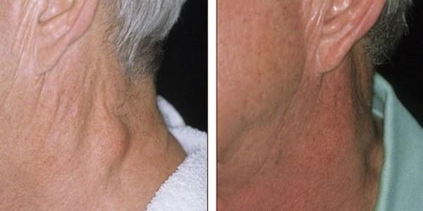 Фото до и после удаления липомы лазером №2