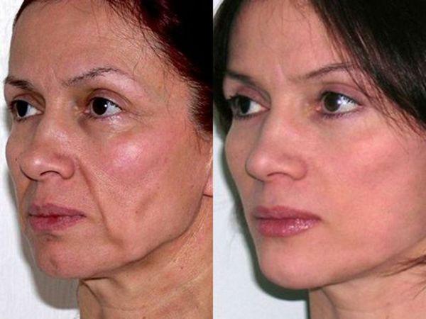 Фото до и после ультразвукового СМАС лифтинга №1