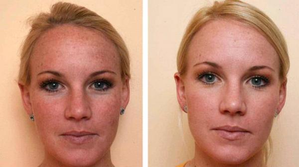 Фото до и после пилинга с использованием винной кислоты