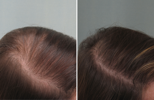 Фото до и после лечения диффузной алопеции с помощью аппарата Дарсонваля №2