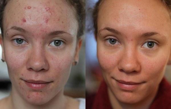 Фото до и после курса процедур миндального пилинга №1