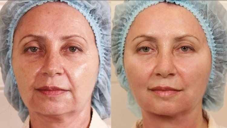 Фото до и после нитевой подтяжки