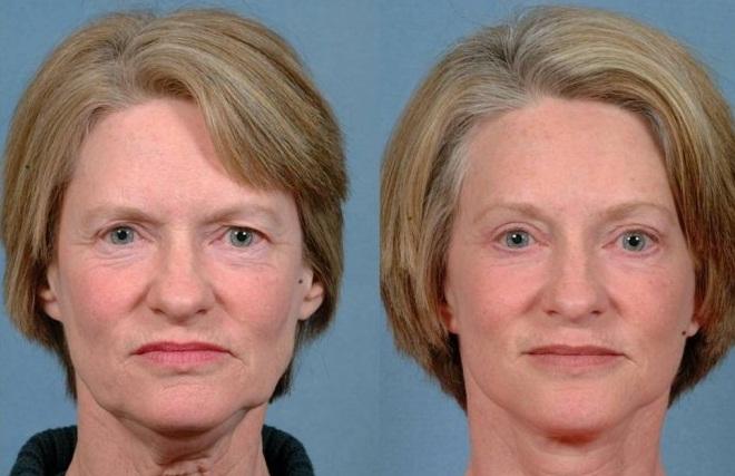 Фото до и после подтяжки эндотинами №1