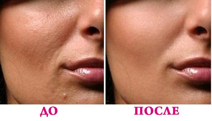 После мезотерапии кожа выглядит подтянутой, более упругой, выравнивается цвет лица