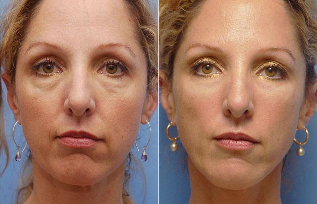 Фото до и после мезотерапии гиалуроновой кислотой №1