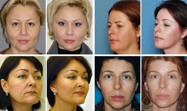 Эндоскопическая подтяжка лица выгодно отличается от аналогичных процедур