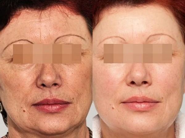 После редермализации овал лица, его черты становятся более четкими