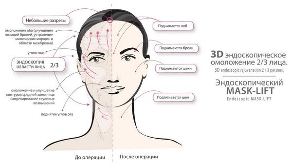3D mask lift