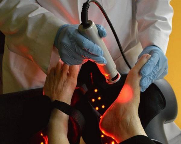 У лазерного удаления мозолей множество плюсов