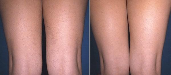 Фото до и после курса процедур энзимной эпиляции №1