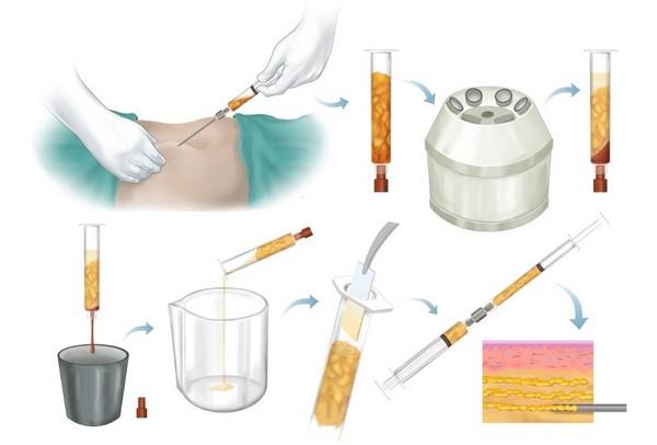 Есть много положительных отзывов о липофилинге для коррекции асимметрии молочных желез