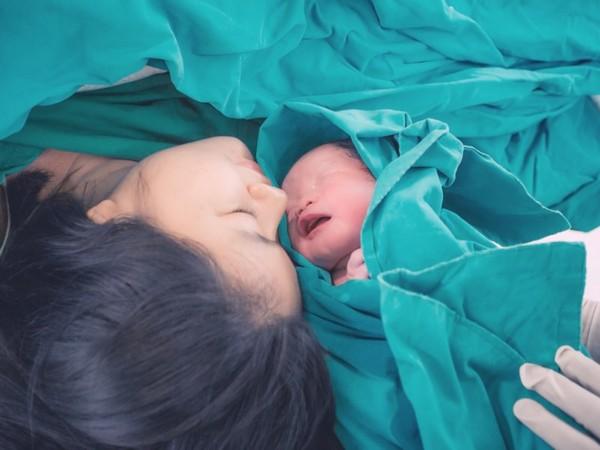 Абдоминопластику часто рекомендуют недавно родившим женщинам