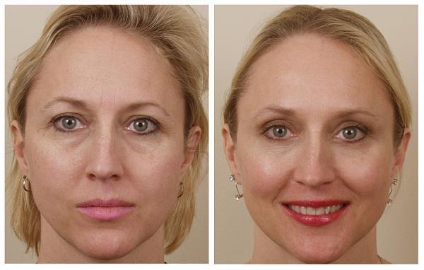 С помощью процедуры можно скорректировать положение века, подтянуть кожу, устранить морщины