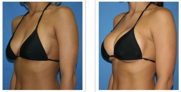 Фото до и после установки имплантов Ментор №1