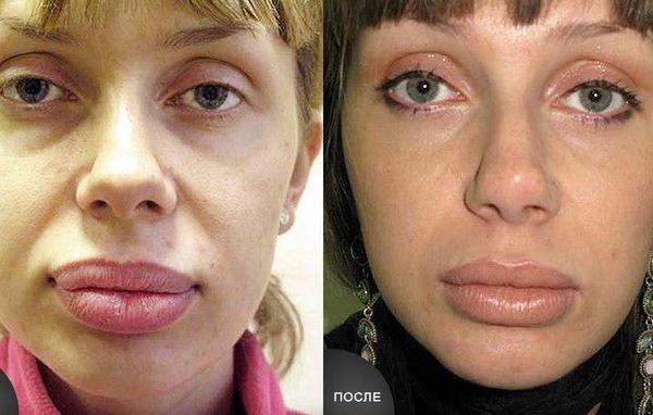 Форму губ можно подправить хирургической пластикой
