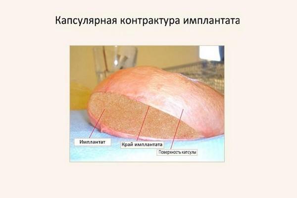 Капсулярная контрактура – опасное осложнение