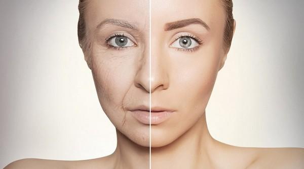 Когда белки коллагена активно распадаются, появляются признаки старения на коже