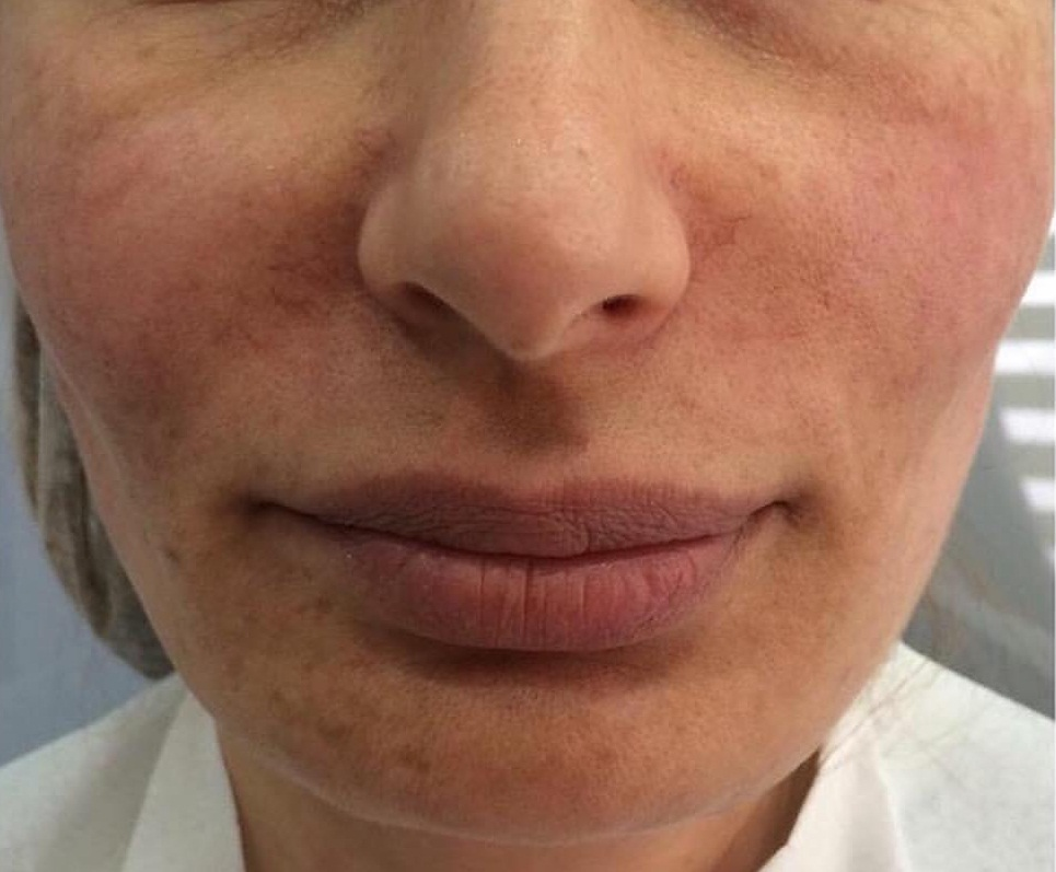 Среди возможных рисков - смещение имплантатов и возникновение уплотнений под кожей