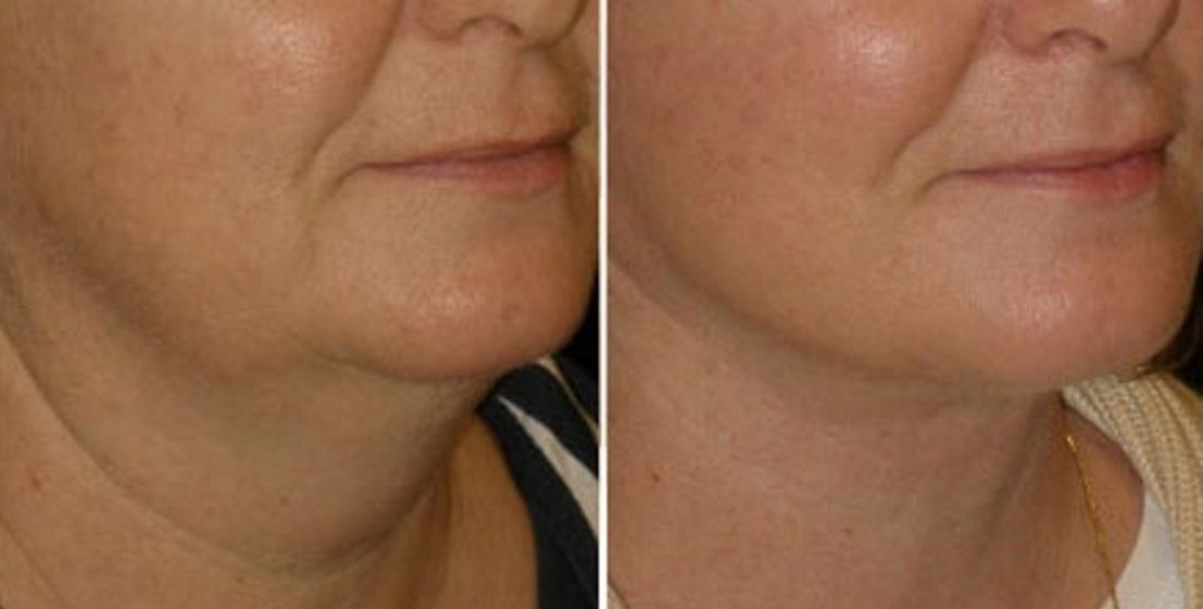 Фото до и после подтяжки эндотинами №3