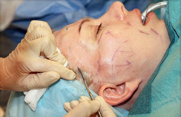 Часто эндоскопический лифтинг лица проводится одновременно с другими процедурами
