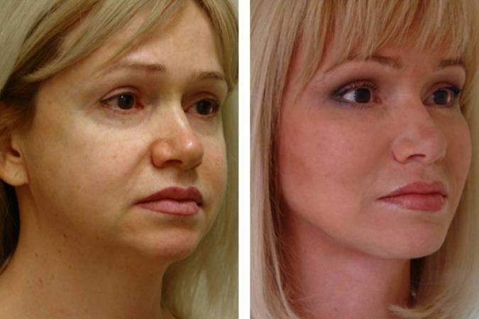 Фото до и после подтяжки эндотинами №2
