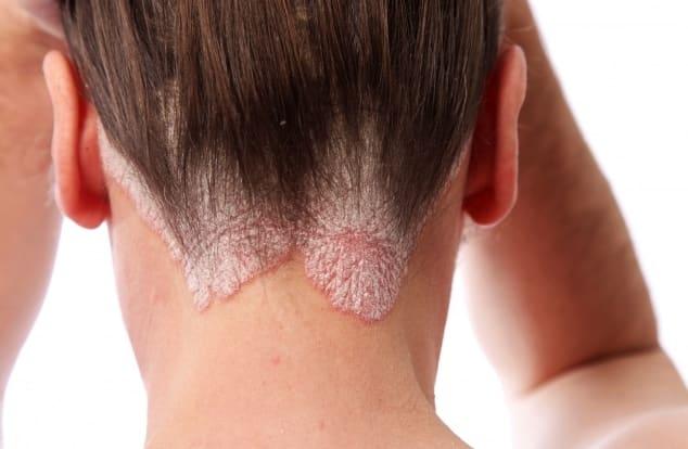 При наличии кожных заболеваний процедура не проводится