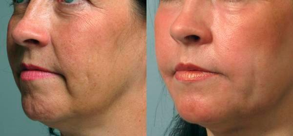Фото до и после мезотерапии гиалуроновой кислотой №2