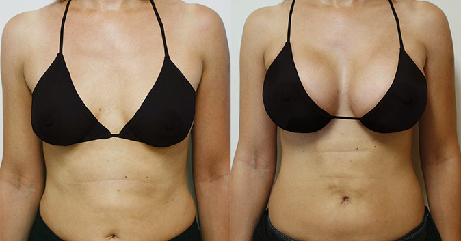 Фото до и после установки имплантов Ментор №3