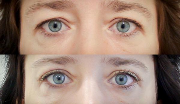 Фото до и после инъекционной блефаропластики №1