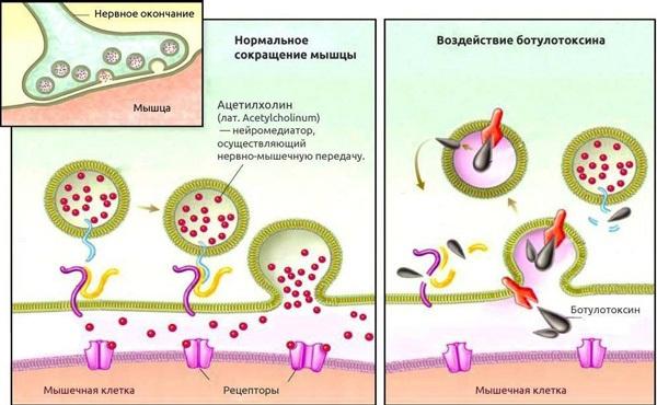 Воздействие ботулотоксина на нервные окончания