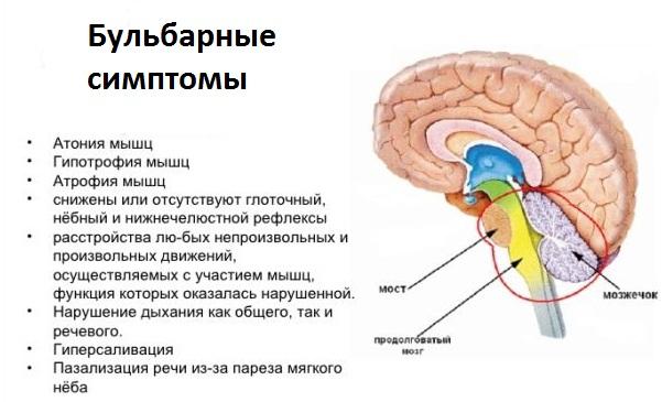 Поражение нервной системы ботулотоксином имеет характерные проявления