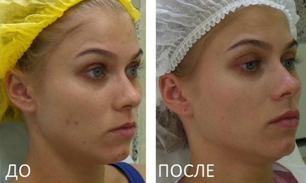 Фото до и после редермализации №1