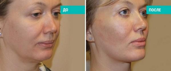 Фото до и после проведения процедуры чек-лифтинга №1