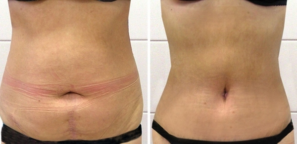 Фото до и после абдоминопластики №1