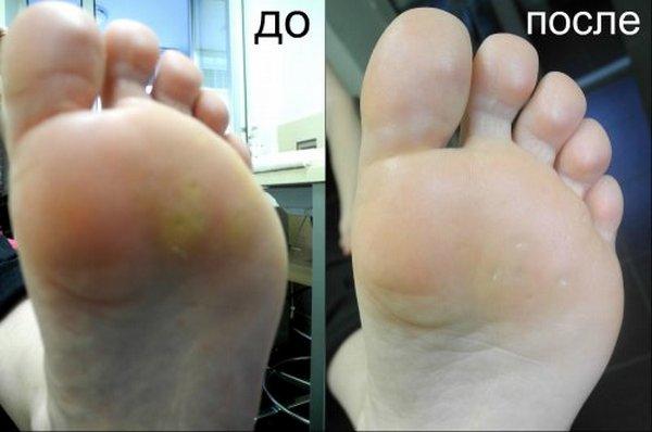 Фото до и после удаления мозоли лазером №1