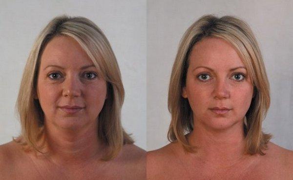 Фото до и после тредлифтинга мезонитями №1
