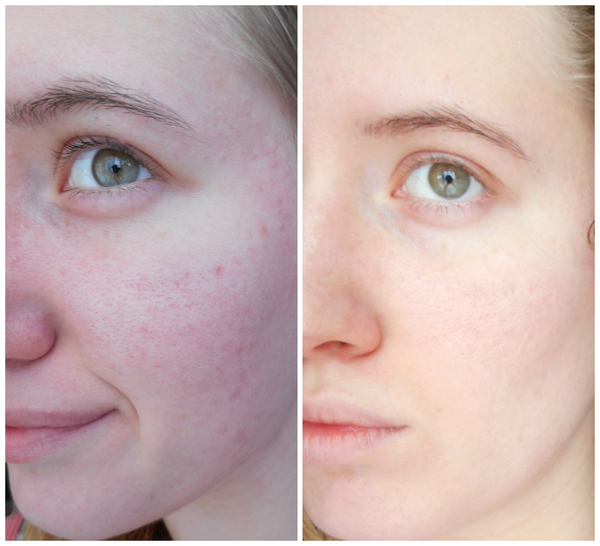 Фото до и после курса процедур фитинового пилинга №2