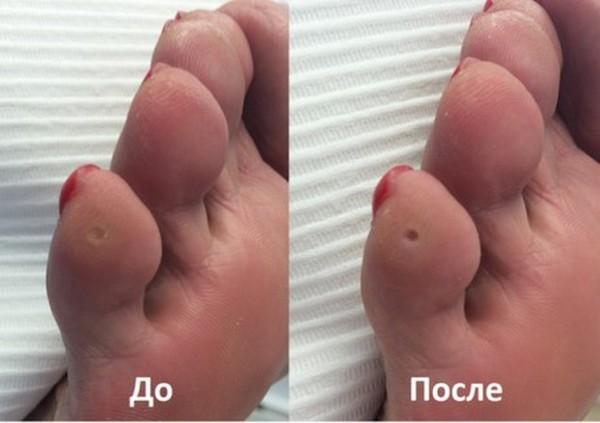 Фото до и после удаления мозоли лазером №2